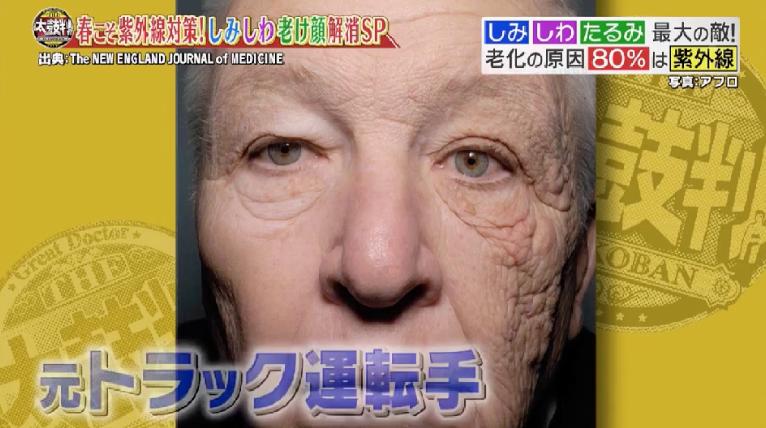 名医のTHE太鼓判,4月16日,ネタバレ,内容,紫外線,老け顔