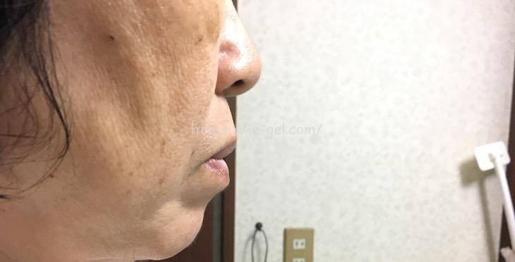 マナラ オンリーエッセンス 口コミ 育菌コスメ