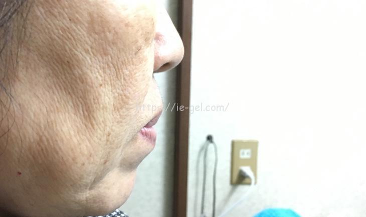 パーフェクトワン薬用ホワイトニングジェルの使用感テスト